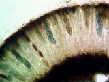 Diploschistes scruposus image